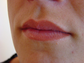 how to make lips thinner permanently