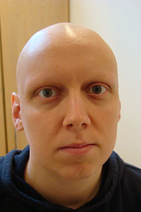 Image result for image of hair loss from chemotherapy