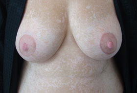 vitiligo breast